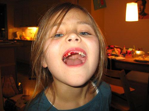 En weer een tand...