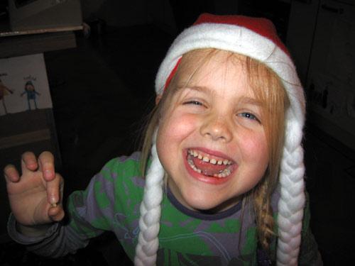 En tand nummer twee...